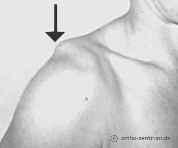 Schmerzen Schlüsselbein Schulter