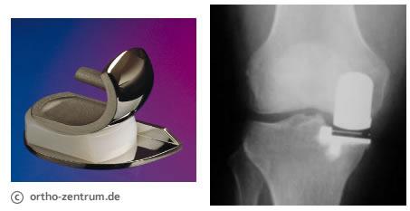 Knie krank lange schlittenprothese wie Schlittenprothese im